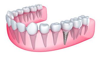 Implantes dentales. Dra. Yolanda Moreno