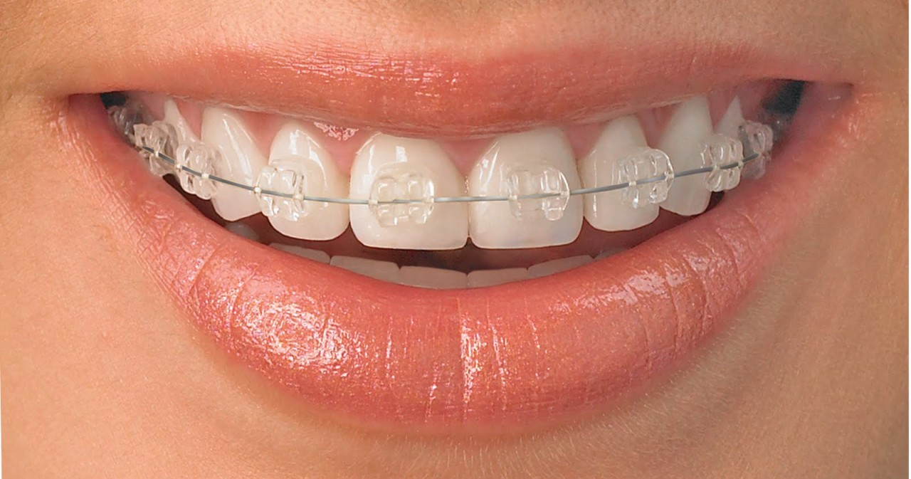 Ortodoncia Dra. Yolanda Moreno